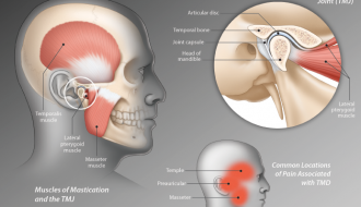 TMJ disorders — a type of temporomandibular disorder or TMD , Massage Sense Den Haag