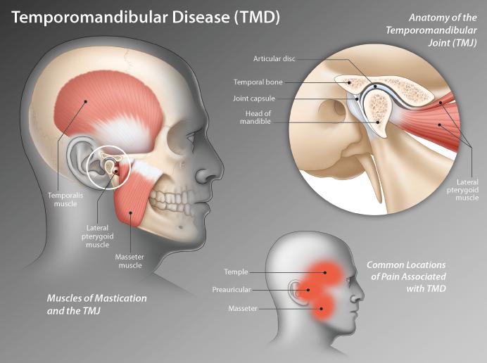 TMJ disorders — a type of temporomandibular disorder or TMD , Massage Sense Den Haag